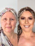 Antes e depois – redesenho das sobrancelhas e maquiagem. Na foto: Maria Bernadete das Neves. Maquiagem: Daniela Rosa – salão L'essence de la Beauté